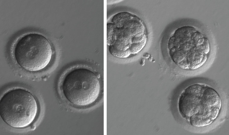 Newly fertilised eggs before gene editing, left, and embryos after gene editing and a few rounds of cell division.
