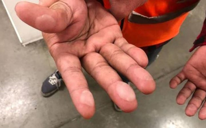 This image of a Sistema worker with blistered hands has been handed out at many distributing stores.