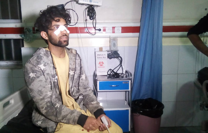 A man receives treatment for his injures at Wazir Akbar Khan hospital after a massive explosion rocked Kabul late on 28 November