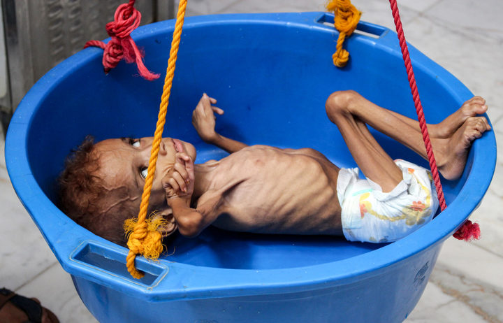 Bassem Mohamed Hassan, a two-year-old Yemeni boy suffering from malnutrition, has his weight measured at a hospital in the northern district of Abs.