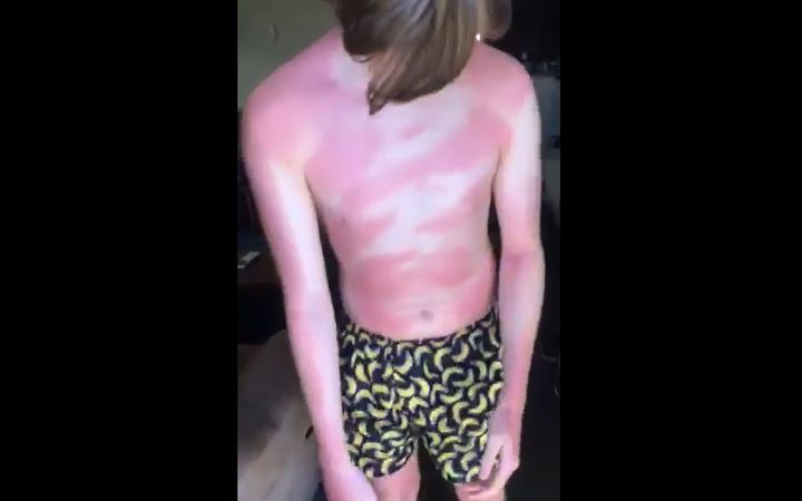 Margaret has complained to Cancer Society after her son still got burnt after using one of their sunscreen products.