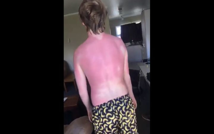 Te Kuiti resident Margaret says her son has spent a week and a half in agony after being sunburnt despite using sunscreen.