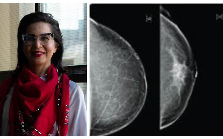 Dr Monica Saini believes New Zealand women should be given more information about the density of their breasts when they get a mammogram.