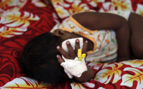A child with measles at Poutasi District Hospital.