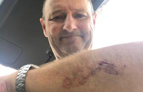 Auckland surfer Nick Minogue was bitten by a Great White shark.