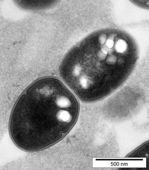 A microscope image of bacteria containing biobeads